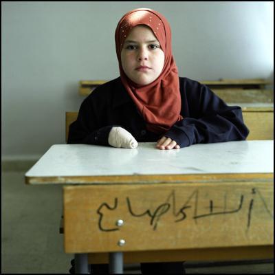 Cluster bomb victims - Zahra - CREDIT: Alison Locke