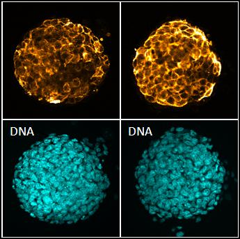 Microscope images - these bovine induced pluripotent stem cell (iPSC)-like) cells express pluripotency markers TRA 1-81 (left) and SSEA-4 (right).